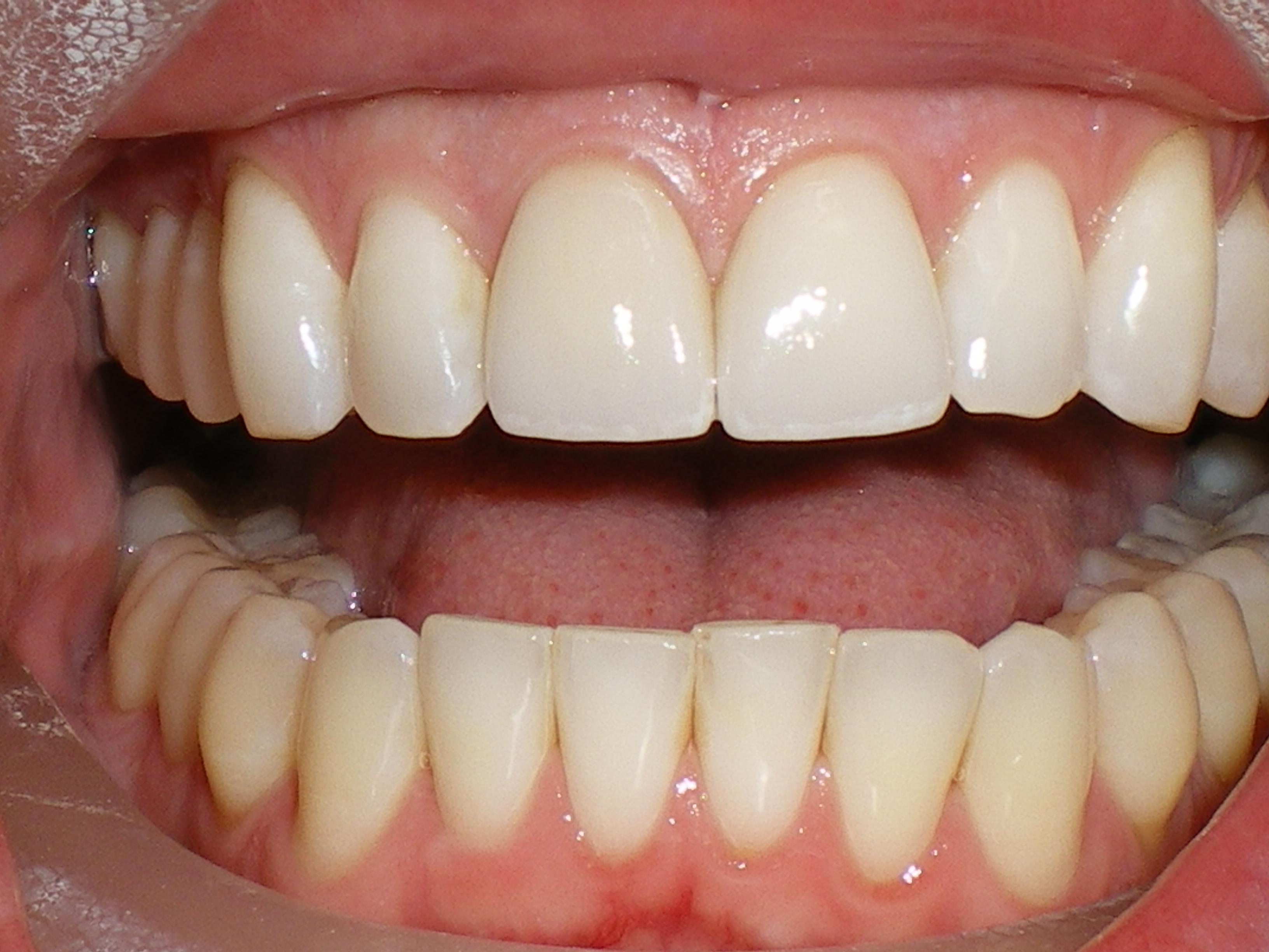Everyday Habits That Damage Your Teeth Olori Supergal