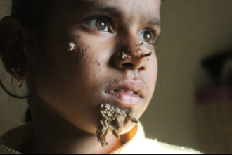 """Sahana Khatun, A 10-year-old girl in Bangladesh is being treated for the extremely rare condition known as """"tree man"""" syndrome."""