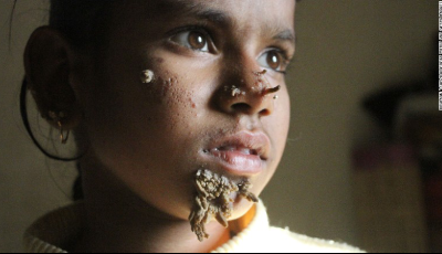 "Sahana Khatun, A 10-year-old girl in Bangladesh is being treated for the extremely rare condition known as ""tree man"" syndrome."