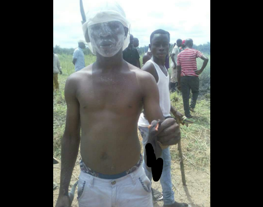 Jungle Justice: Angry Mob Cut Off Rapist D*ck In Niger (Photo)